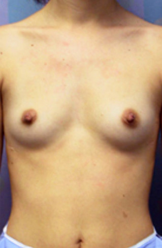 Breast Enhancement Before Picture
