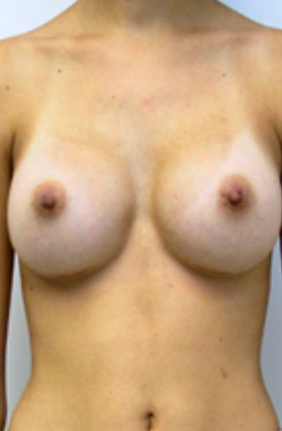 Breast Enhancement After Picture