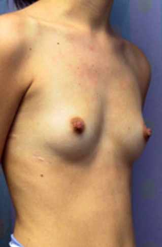 Breast Enlargement Before Picture