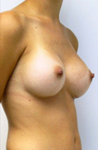 Breast Enlargement After Picture