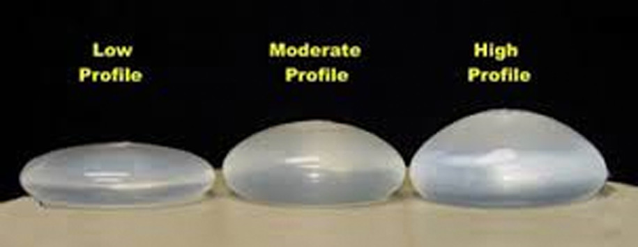 Low Moderate and High Profile Breast Surgery