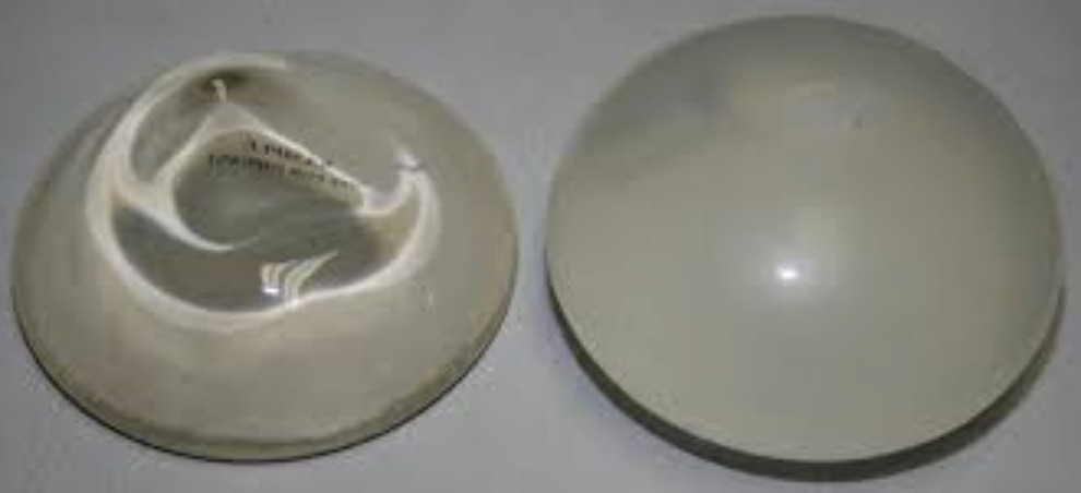 Silicone Implants