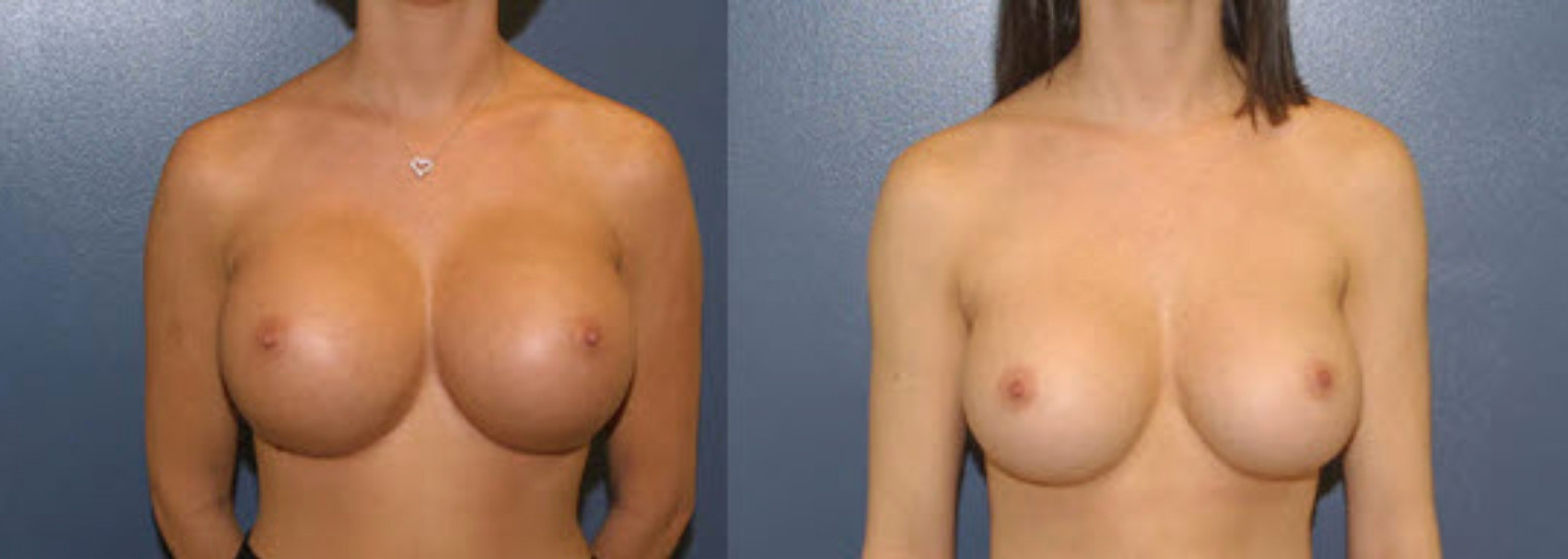 Unshapely Breast Enhancement