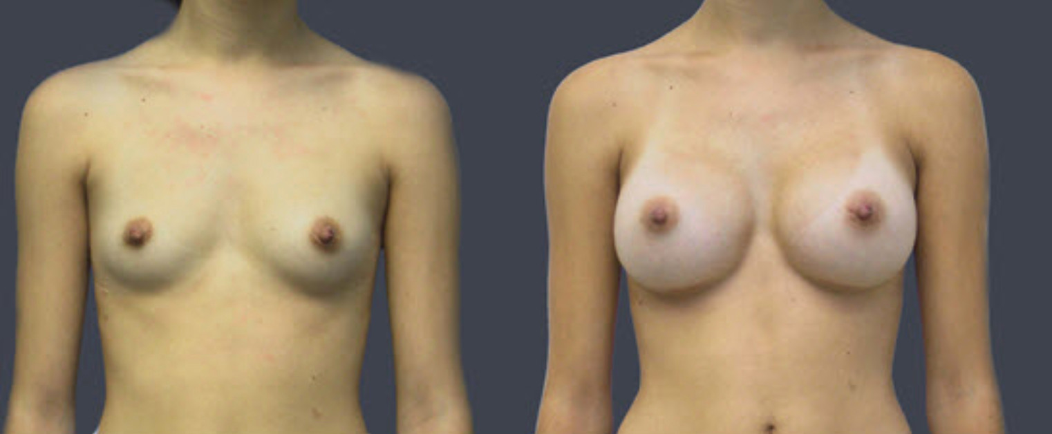 Annapolis Breast Augmentaition