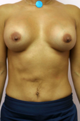 After a Breast Correction