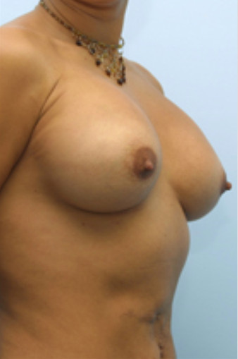 Breast Correction in Virginia