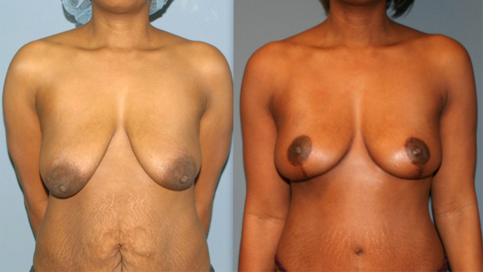 Breast Lift Surgery in Virginia