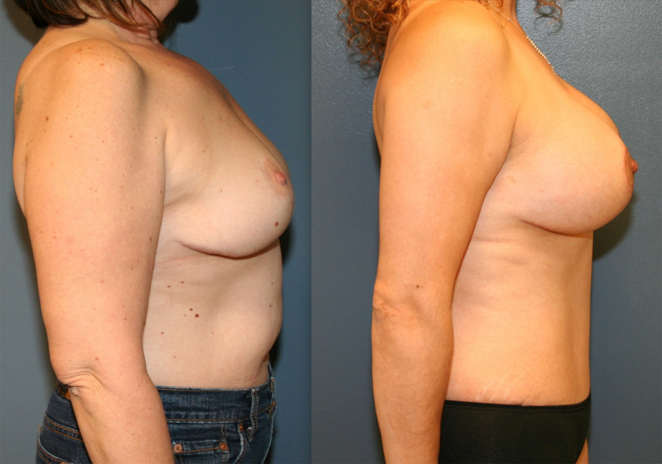 Maryland Plastic Surgery Before and After
