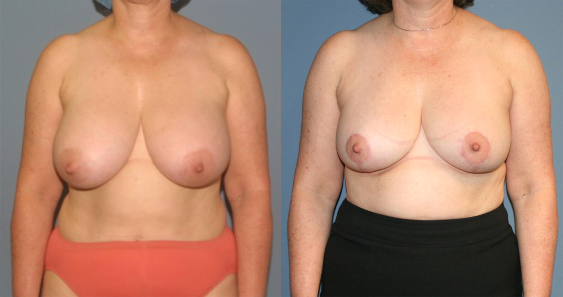 Breast Reduction in Annapolis