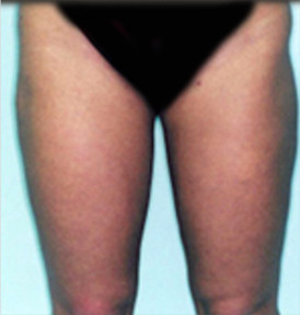 Liposuction in Maryland