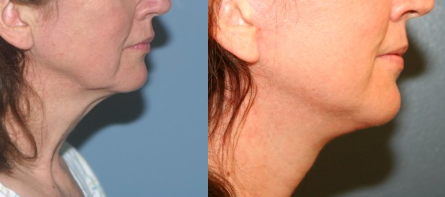 Facelift after weight loss