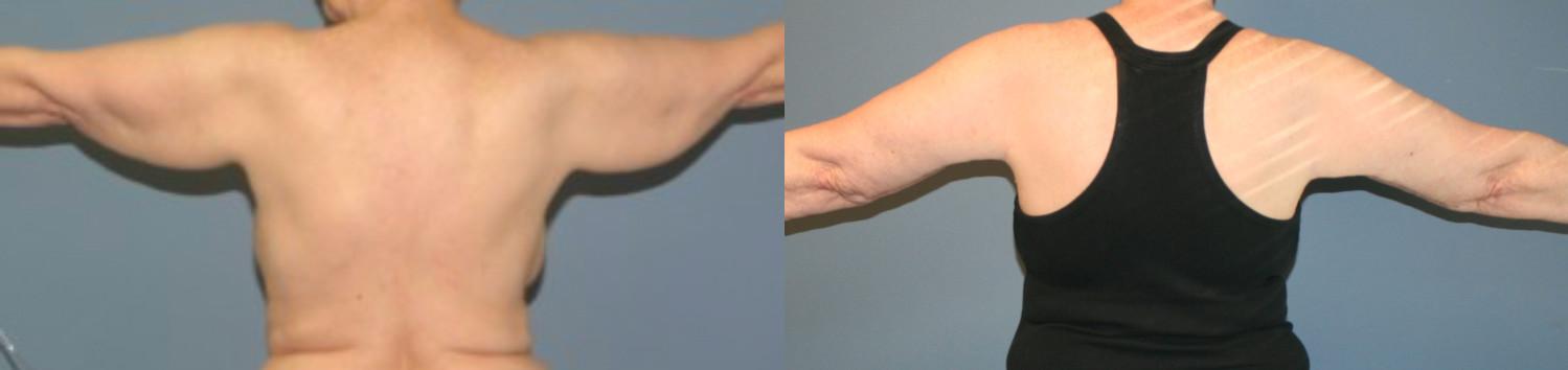 Brachioplasty after weight loss