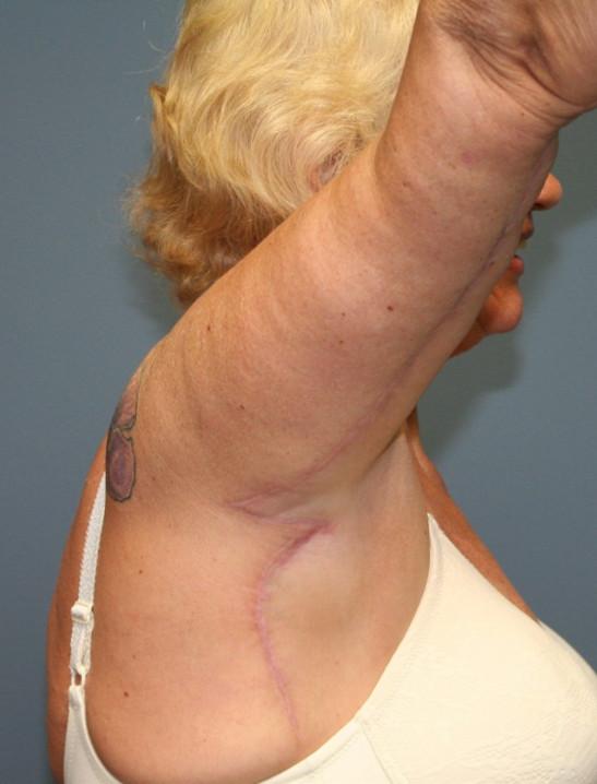 After Brachioplasty Surgery