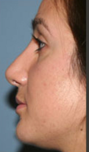 After plastic surgery in Rockville, MD