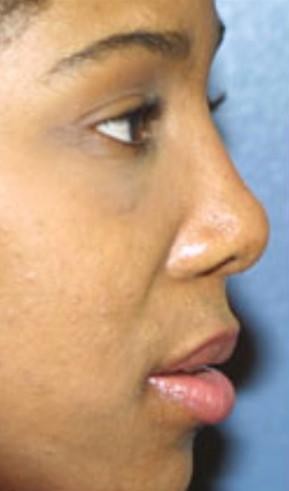 Nose surgeon in Baltimore