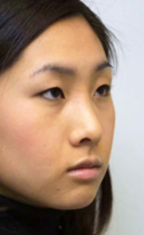 Rhinoplasty plastic surgeon Maryland