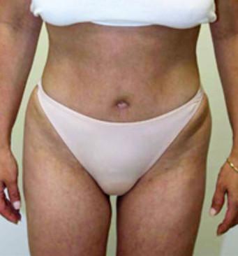 Abdominoplasty Surgeon