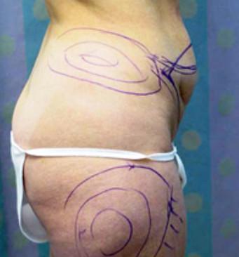 Plastic Surgeon Tummy Tuck