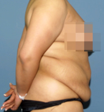 Tummy Tuck Surgical Group