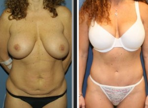 tummy tuck after weight loss