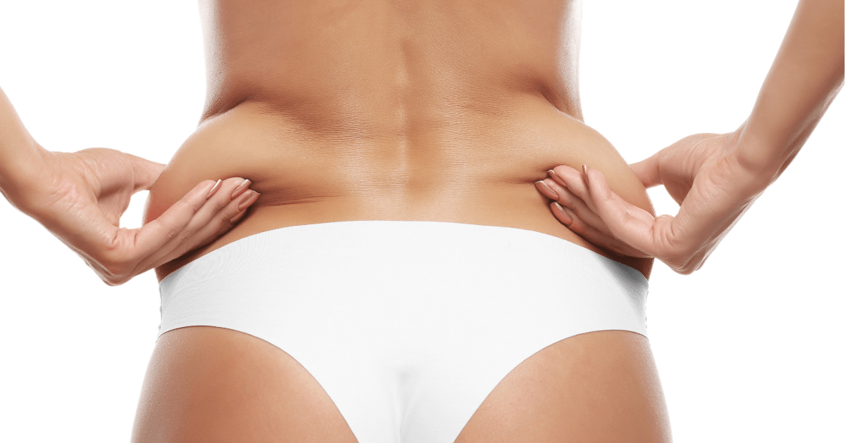posterior flank liposuction