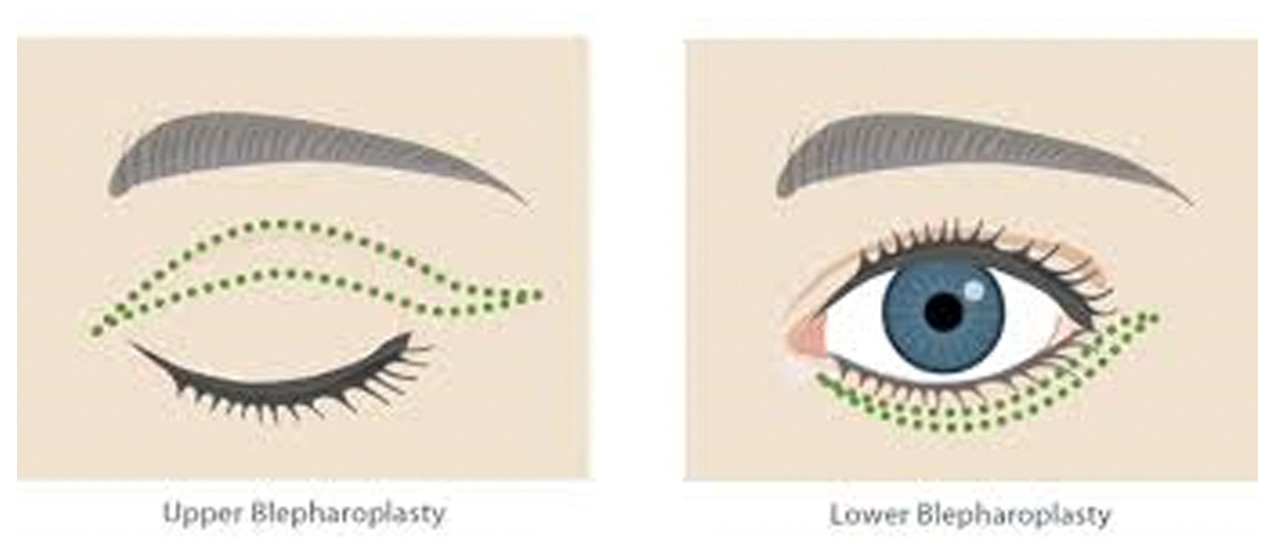 Blepharoplasty in DC