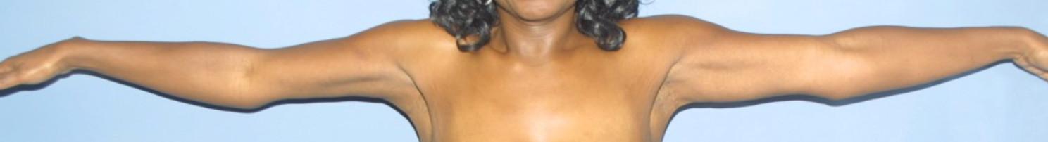 Brachioplasty in Virginia