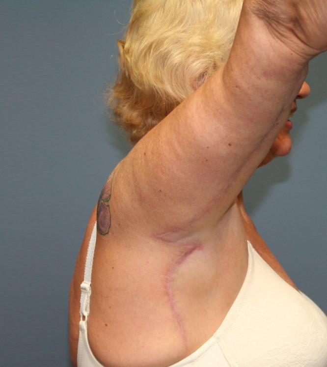 Brachioplasty Surgical Procedure