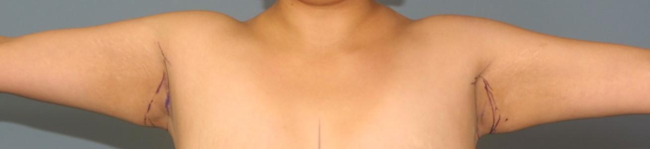 Brachioplasty Short Scar