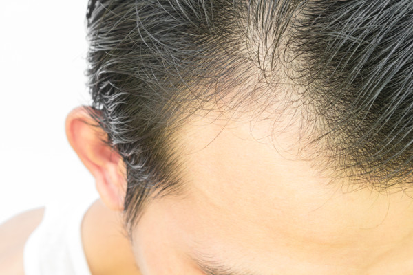 Hair follicle surgery in Maryland
