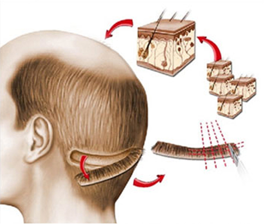 Hair surgery in MD