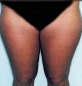 Liposuction in Virginia