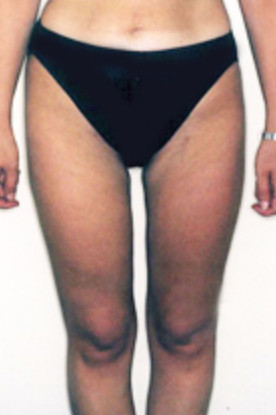 Liposuction Surgery in Baltimore