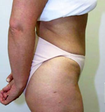 Plastic Surgery Tummy Tuck
