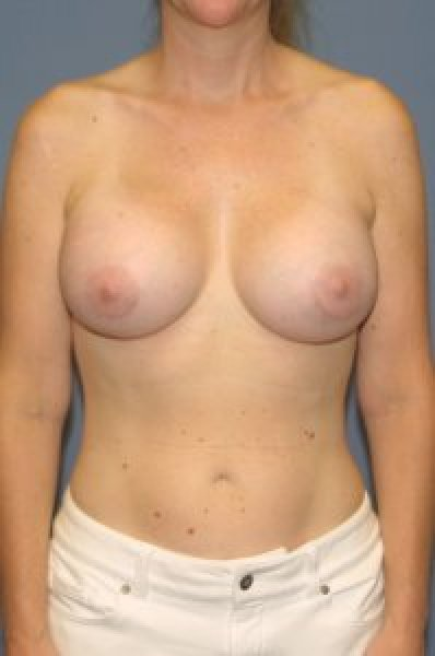 After cosmetic surgery in Washington