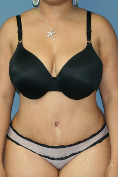 Cosmetic stomach surgery