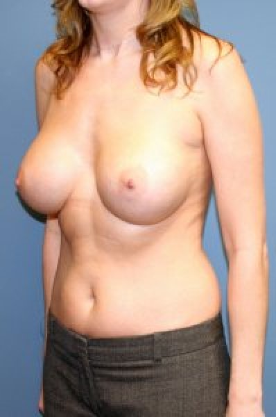 Breast surgeon in Maryland