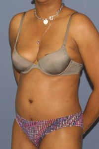 Tummy tuck surgery in MD