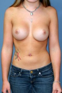 Annapolis plastic surgery