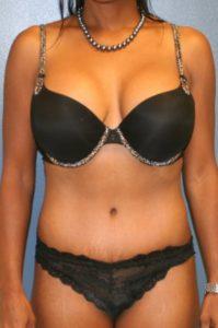 Abdominoplasty in VA