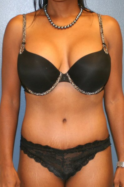 Abdominoplasty in VA