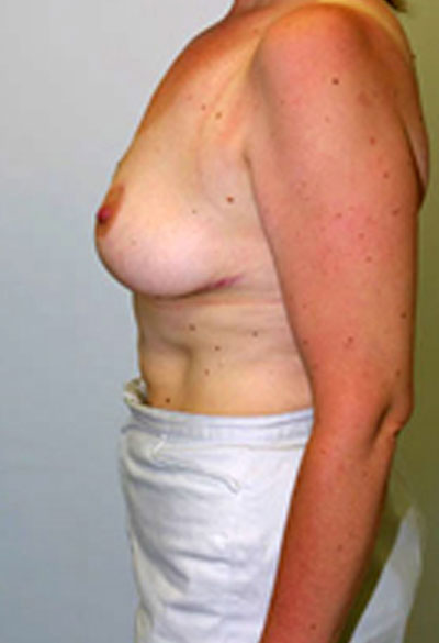 Best breast lift in VA