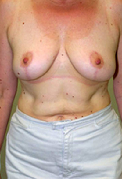 Breast lift surgery in Maryland