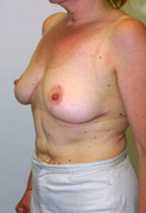 Breast lift no scar in Maryland
