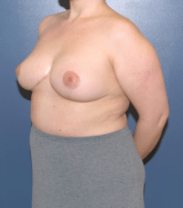Breast reduction surgery in MD