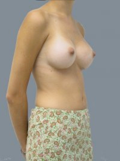 After breast augmentation in DC