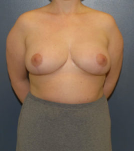 Breast reduction surgery in DC