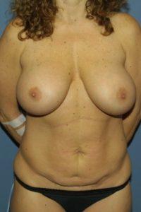 Before procedure begun