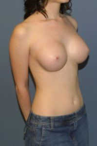 Breast augmentation in McLean, VA