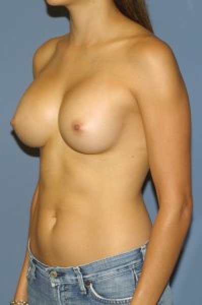 Breast augmentation in Maryland
